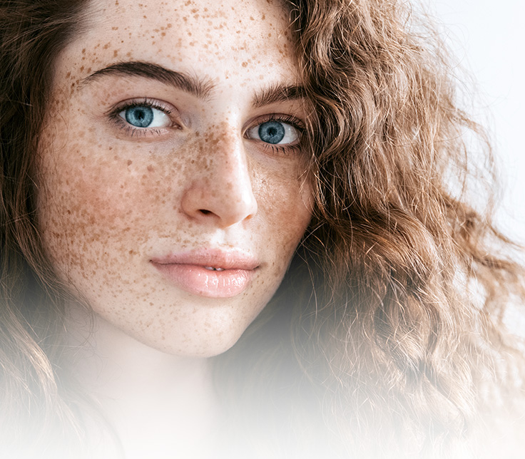 Zabiegi redukujące przebarwienia