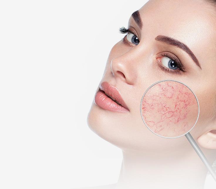 Zabiegi skóry naczynkowej